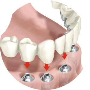 implantes_dental