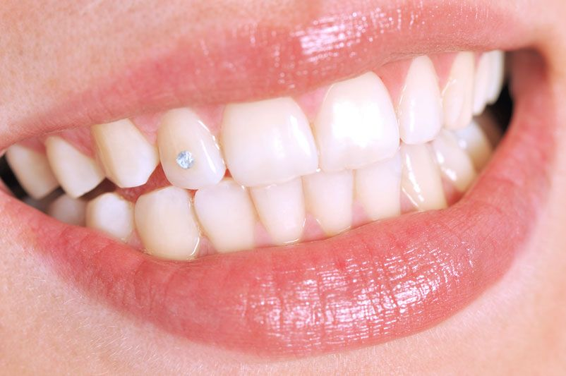 Clínica dental Odas Barcelona foto tratamientos estética dental piercing